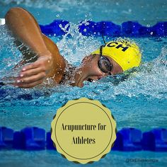 Why Olympians Receive Acupuncture