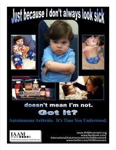 Juvenile Autoimmune Arthritis, Juvenile Rheumatoid Arthritis, Juvenile Idiopathic Arthritis, Juvenile Chronic Arthritis