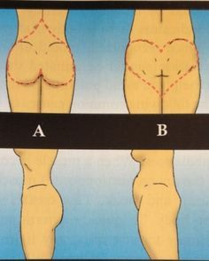 The best glute activation exercises to correct lazy butt syndrome or heart shape bottom syndrome so you can start getting great results from your booty exercises and workouts.