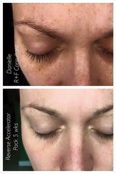Exposure to the sun and the environment left Danielle with brown spots and dull discolored skin! Check out how her skin has visibly brightened in 5 weeks of using Reverse! This regimen comes with a SPF 50 Sunscreen which defends against sun exposure and Danielle can take comfort in knowing that she will have a radiant complexion for a very long time! And so can you too! Message me to see if Reverse will be right for you. www.sheabookout.myrandf.com
