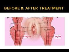 Tight Vagina naturally with 100% herbs , Vagina tightening Ayurvedic kit योनि संकुचित के कुदरती उपाय - YouTube
