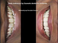 """Smile makeovers by Expert Cosmetic dentist Dr Trivikram Rao (Dr Vikram) have enhanced thousands of smiles in the last 16 years. Skillfully blending science and art, Dr Trivikram can """"sculpt"""" a more attractive smile for you in just 3-4 visits in 7-10 days. Read more http://www.allsmilesdc.org/cosmetic-dentistry/ ."""