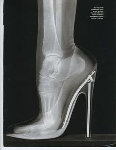 X-ray of a foot in a high heel shoe. Why do we do this to ourselves?