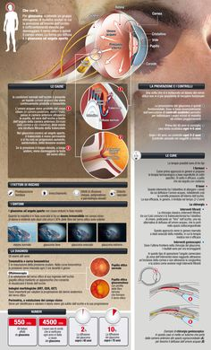 Glaucoma Infographic. Taking care of your eyes