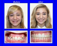 Braces Retainer, Braces Tips, Dental Braces, Smile Teeth, Orthodontics, Beautiful Smile, People, Face, London