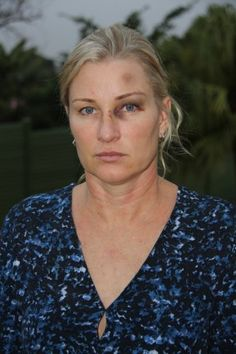 Durban North woman brutally attacked over a parking space