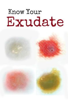Exudate: The Type and Amount Is Telling You Something.  Wound care clinicians need to know about the different types of exudate - and how much is present - for successful wound treatment and healing.