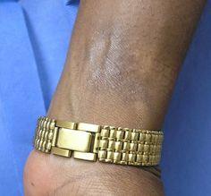 Page not found - Dermatitis Academy Contact Dermatitis, Alternative, Bracelets, Free, Jewelry, Jewlery, Jewerly, Schmuck, Jewels