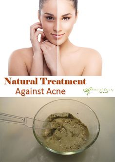 Natural Treatment Against Acne | Beauty Island