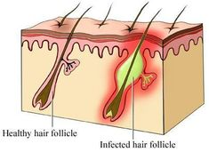 How to Get Rid of Boils on Inner Thighs and Buttocks, Boils are one of the most common skin disorders that everyone has encountered. Some of