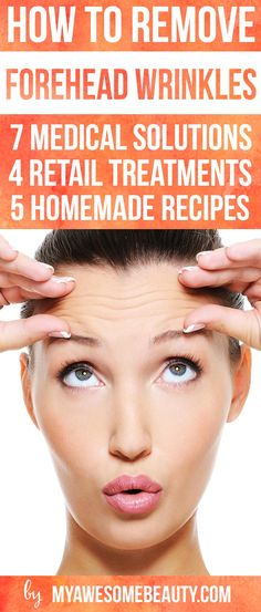 How to get rid of forehead wrinkles. medical procedures, treatlents for home us and DIY recipes. http://myawesomebeauty.com/get-rid-forehead-wrinkles/