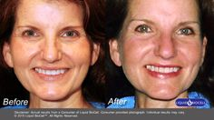Before and After Photos, Liquid BioCell, United States