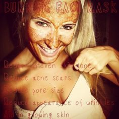 Burning face mask: How to reduce acne scars and uneven skin tones * 2 tbs Raw Honey * Juice of 1/4 Lemon * 1/2 tbs Cinnamon * 1/2 Nutmeg  Let sit for 30 min. Wash off with a cloth and warm water.
