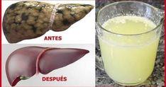 Cómo curar por siempre el hígado graso y dejarlo como nuevo con un solo vaso de esta receta