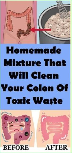 Your colon is one of the most important organs in your digestive system and if it isn�t working properly you could experience a number of medical issues. According to statistics more than 50 million people in the States have some kind of medical problem linked to colon health. Even though a number � Cleaning Your Colon, Colon Health, Natural Colon Cleanse, Irritable Bowel Syndrome, Healthy Teeth, Healthy Food, Stay Healthy, Healthy Drinks, Healthy Brain