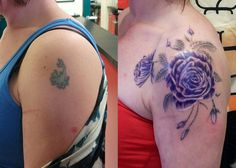 Purple flowers cover up tattoo with before and after pictures