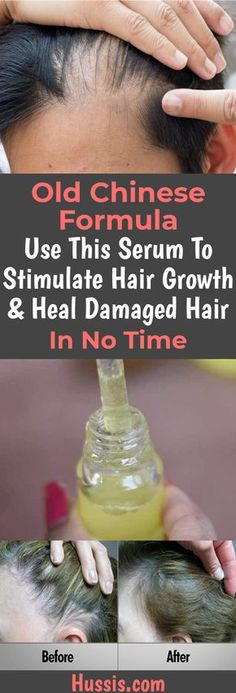 Old Chinese Formula Use This Serum To Stimulate Hair Growth & Heal Damaged Hair In No Time, . Old Chinese Formula Use This Serum To Stimulate Hair Growth & Heal Damaged Hair In No Time, Natural Hair Care, Natural Hair Styles, Hair Loss Remedies, Hair Growth Tips, Diy Hair Growth Serum, Hair Regrowth, Hair Follicles, Hair Loss Treatment, Bald Spot Treatment
