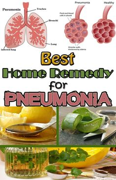 Best home remedy for pneumonia - TopFashionDIY.net