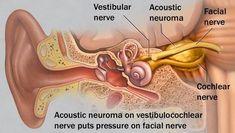 QnC Jelly Gamat ( GLQ ) Solusi Ampuh Atasi Penyakit Neuroma Akustik secara Alami dan cepat, Serta Aman Tanpa Efek Samping !!