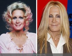 Joan Van Ark   You wouldn't want bad plastic surgery would you? Better to avoid plastic surgery altogether and use skin care products specially formulated for you.   #plasticsurgery  #Botox  #skincare www.skin-care.personalised-supplements.com