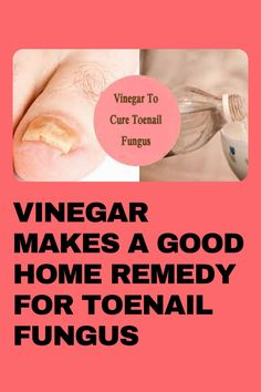 Looking to get rid of a nail fungus fast? A vinegar foot soak is a popular nail fungus home remedy that uses a simple white vinegar that you probably already have in your home! It's cheap and it works. Click through for more information on how to do it yourself. Toenail Fungus Vinegar, Toenail Fungus Home Remedies, Foot Soak Vinegar, Fungal Infection, Fungi, You Nailed It, The Cure, White Vinegar