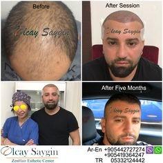 And Most Experienced Doctor As You Are Looking Will E Through A Name Of Dr Olcay Saygin Who Has Successful Operations Since 2006