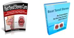 Best Tonsil Stones Removal to Get Rid of Tonsilloliths For Good