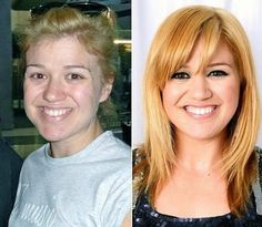 13 Shocking Photos Of Celebrities Without Makeup- page (7)