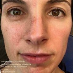 Side by side results after 5 months of REVERSE & REDEFINE & our fab multi-function eye cream...   As cute as they may be...freckles are really sun damage