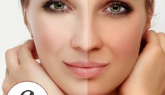 6 Home Remedies To Remove Tan From Face