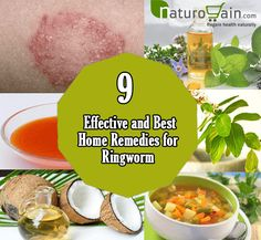Home remedies for ringworm are the best methods to curb bacterial and fungal infections and their regular use provides relief in a short duration.
