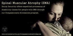 #SpinalMuscularAtrophy Awareness Month. We expedite disability claims for #SMA through our Compassionate Allowances www.socialsecurity.gov/compassionateallowances/