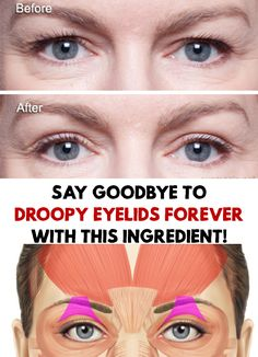 Say Goodbye To Droopy Eyelids Forever With This Ingredient Drooping eyelids are usually the result of ageing and are very unpleasant. Say Goodbye To Droopy Eyelids Forever With This Ingredient! Saggy Eyelids, Drooping Eyelids, Droopy Eyes, Hooded Eyelids, Home Remedies For Hair, Strep Throat Home Remedies, Luscious Hair, Beauty Care, Beauty Hacks