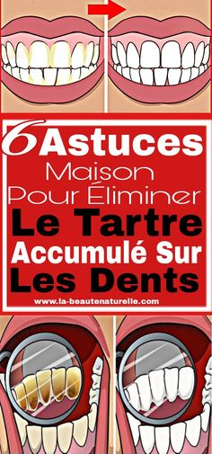 6 Astuces maison pour éliminer le tartre accumulé sur les dents Dog Bowls, Life Hacks, Nutrition, Health, Vocaloid, Tooth, Fitness, Inspiration, Products