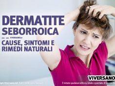 Dermatite seborroica: cause, sintomi caratteristici e rimedi naturali utili