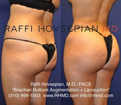 Before and After of Dr Raffi Hovsepians patient who underwent Dr Hovsepians Advanced Liposuction Technique with Buttock Augmentation Brazilian Butt Lift using her own fat. Before And After Liposuction, Bbl Surgery, Tummy Tuck Before After, Tummy Tuck Surgery, Implant, Mommy Makeover, Tummy Tucks, Weight Loss Before, Glutes