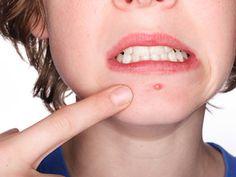 Chào các chuyên gia! Cách chữa mụn bọc hiệu quả nhất hiện nay là gì ạ? Em muốn loại bỏ mụn bọc thì nên dùng thuốc hay điều trị bằng công nghệ cao ạ? Mong nhận được tư vấn sớm của các chuyên gia!
