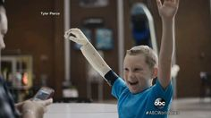 6-Year Old Gets 3D Printed Bionic Arm - pinned by @PediaStaff – Please Visit ht.ly/63sNtfor all our pediatric therapy pins