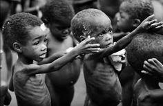 poor-nutrition-kids