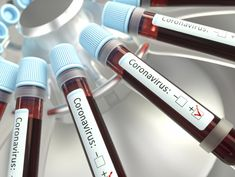 PEOPLE with certain blood types are more susceptible to the deadly virus and tend to show more severe symptoms, breakthrough research has found. Translational Medicine, Sumo, Blood Plasma, Shot In The Dark, Blood Groups, Chief Operating Officer, Nova, Infection Control, Blood Donation