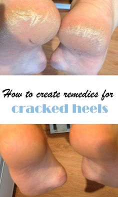 DIY Cracked Heels Remedies ~ How to create remedies for cracked heels