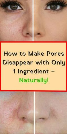 Get a Clean Face Free Of Pores Using This Amazing Natural Ingredient!  The most common problem that people with oily skin are experiencing is large pores. The main cause of these problem is dirt and bacteria which are irritating your skin....  #Natural #Ingredient #skin #bacteria #health