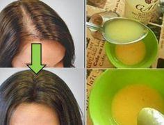 This simple remedy helps your hair growth! This simple remedy helps your hair growth! Beauty Care, Hair Beauty, Hair Loss Causes, Hair Loss Remedies, Tips Belleza, Grow Hair, Fall Hair, Hair Hacks, Hair Growth