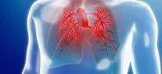 Hipertensión Pulmonar el diagnóstico precoz es clave para los pacientes   La detección temprana y nuevos tratamientos pueden mejorar significativamente la sobrevida de quienes que la padecen.  La Hipertensión arterial pulmonar (HAP) es una enfermedad poco frecuente en algunos casos con base genética. Con una prevalencia baja suele presentarse en 15 casos cada millón de habitantes pero puede ocasionar peligro de muerte o invalidez crónica. Su principal síntoma es la disnea (fatiga o falta de…