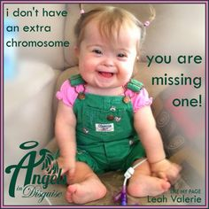 Cuter than cute (downs syndrome cutie pie)