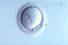 Μέχρι ποιά ηλικία θα πρέπει να περιμένει μια γυναίκα για να κρυοσυντηρήσει τα ωάρια της