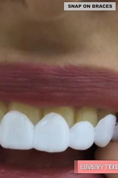 Each person on this planet owns a different set of teeth, that is why we will introduce you to a product that can give that IDEAL SMILE to every person, regardless what kind of teeth they have. Introducing the PERFECT SMILE SNAP ON BRACES. Perfect Smile Teeth, Teeth Whitening Procedure, Teeth Bleaching, Clear Skin Tips, Stained Teeth, Cool Gadgets To Buy, Exfoliate Face, White Teeth, Health And Beauty Tips