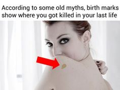 What Does Your Birth Mark Reveal About How You Were Killed In Your Past Life?