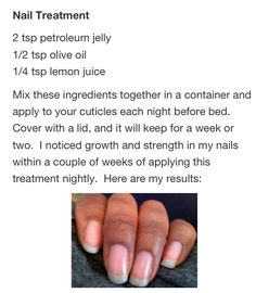 Nail growth and strength natural treatment