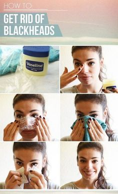 How to get rid of blackheads at home 100% Pure